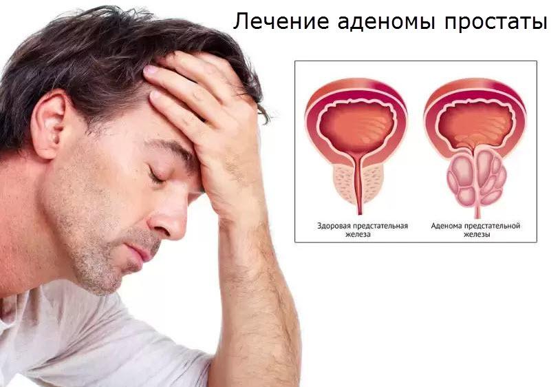 Утомляемость от простатита пенестер при простатите
